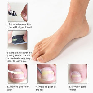 InGrown Toenail Corrector (10PCS)