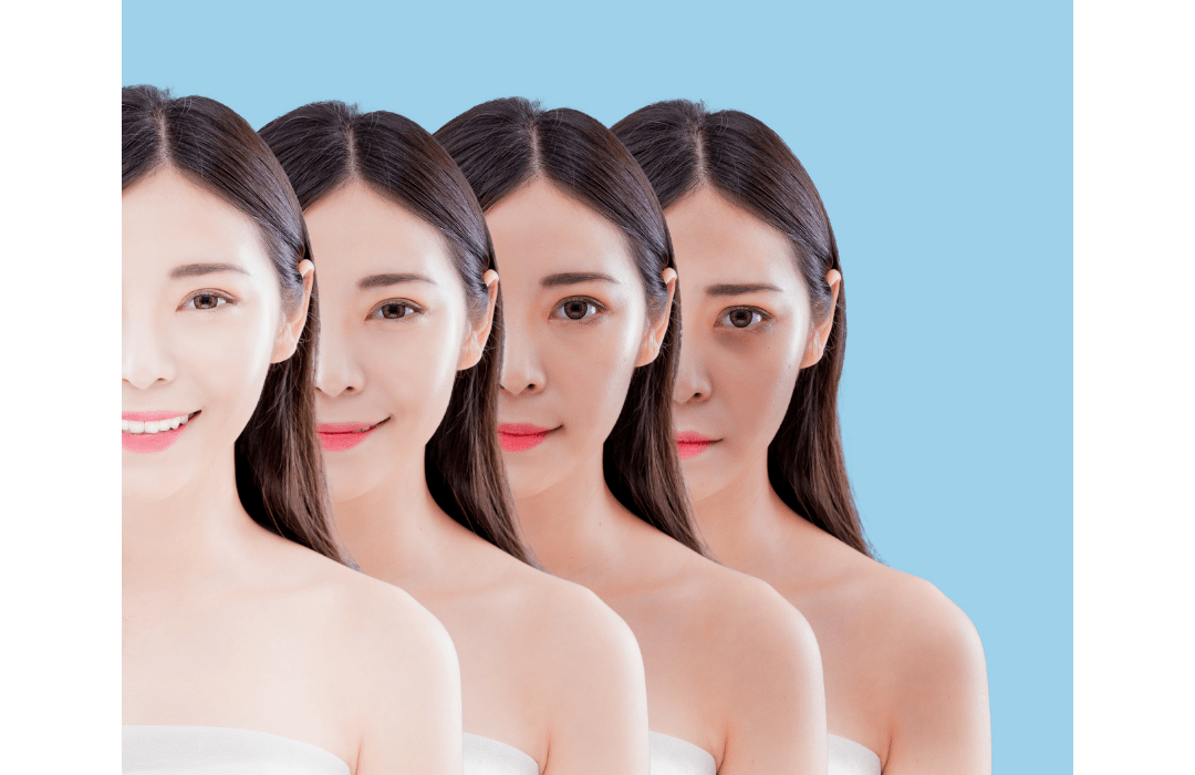 3 Quick & Easy Facts About Skin Whitening