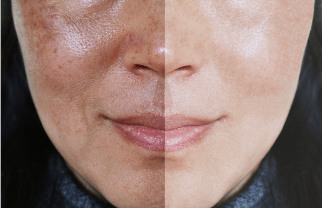 The Truth About Melasma Every Woman Needs To Know