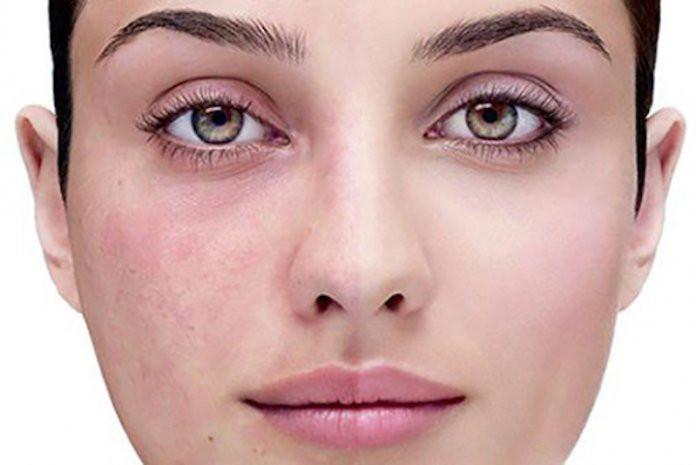 Soothe Your Skin: 5 Natural Remedies for Rosacea