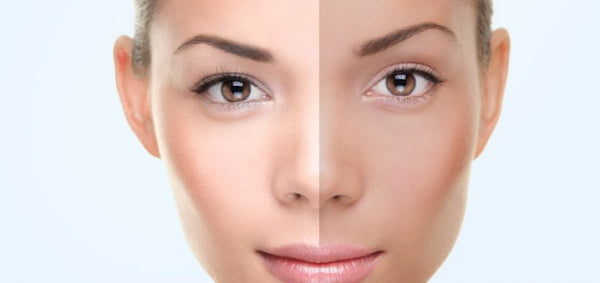 In a separate clinical study a significant lightening effect was seen in most tests with melasma and solar lentigos. This protective effect stems from the ...  sc 1 st  Swiss Botany & Whitening Cream | Natural u0026 Powerful skin whitening cream ... azcodes.com