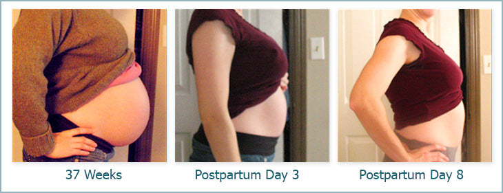 Postpartum Binder