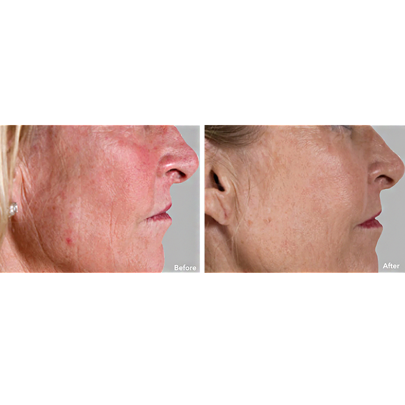 AnteAGE MD System Sun Damage Before and After