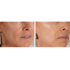 AnteAGE MD System Wrinkles Before and After