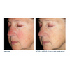 Skinbetter Alto Defense Serum - 1 oz - $145.00 - Before and After