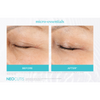 Neocutis Micro-Night Rejuvenating Cream 6 Month Before and After 1