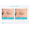Neocutis Micro-Night Rejuvenating Cream 6 Month Before and After 2