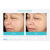 Neocutis Micro-Night Rejuvenating Cream 6 Month Before and After 3