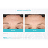 Neocutis Micro-Night Rejuvenating Cream 6 Month Before and After 4