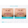 Neocutis Micro-Night Rejuvenating Cream 6 Month Before and After 5