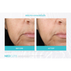 Neocutis Micro-Night Rejuvenating Cream 6 Month Before and After 6