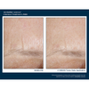 Skinbetter Science Intensive Treatment LINES 4 Week Application Results - Forehead