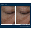 Skinbetter Science Interfuse Daily Treatment Cream EYE 8 Week Trial Results 1