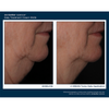 Skinbetter Science Interfuse FACE 4 Week Results - Firmer Neck