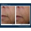 Skinbetter Science Interfuse FACE 4 Week Results - Improvement of Smile Lines