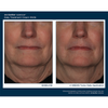 Skinbetter Science Interfuse FACE 4 Week Results - Lifted Neck Improvement