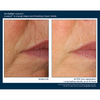 Skinbetter Science Invisilift 3- Minute Mask and Finishing Cream Immediate Lift of Mouth Wrinkles