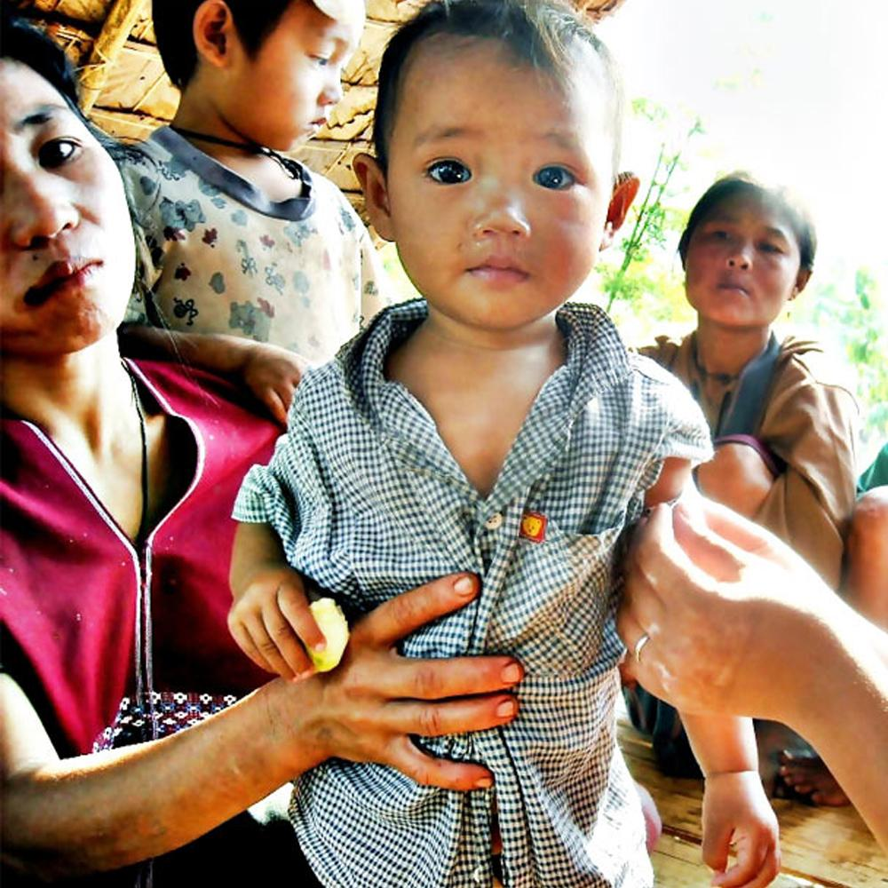 Donation - Help A Malnourished Child In Burma