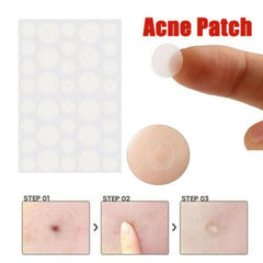 Acne Sticker Patches Invisible Skin Care for Pimples  36 Pieces