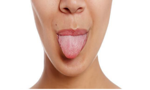 WHAT IS YOUR TONGUE TELLING YOU?
