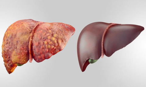 Healthy liver vs unhealthy liver