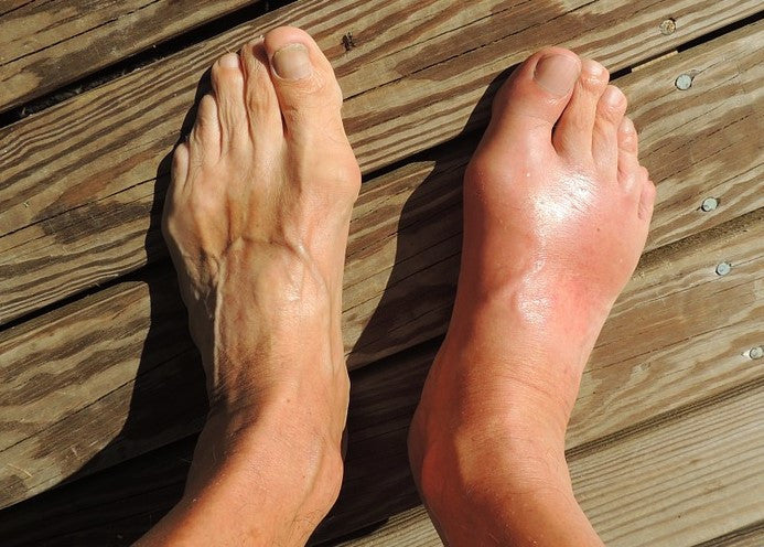 7 Of The Best Essential Oils For Gout with Quick Results