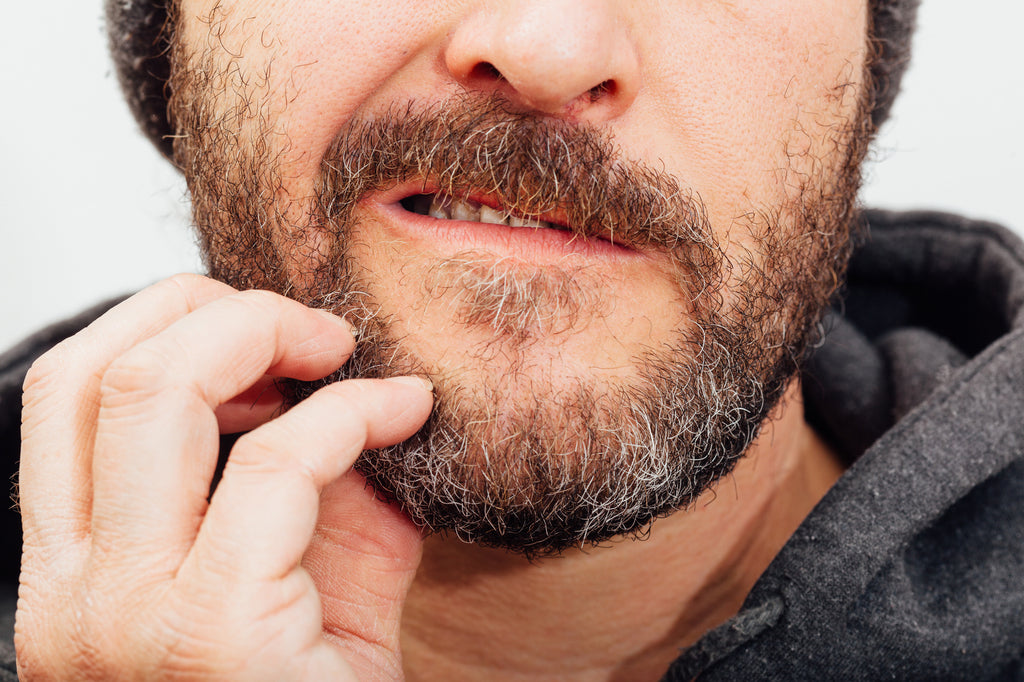 beard oil for dandruff