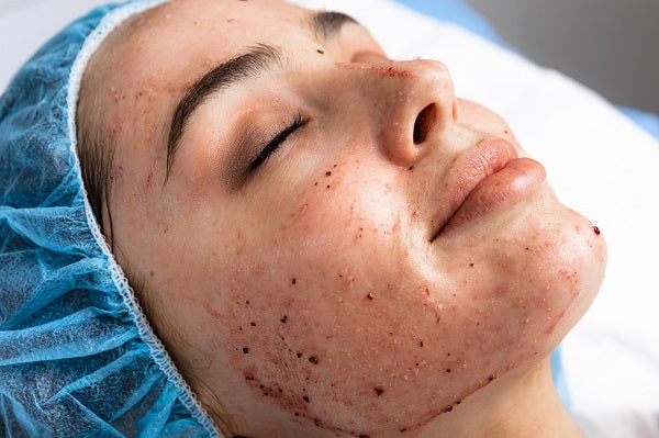 Chemical Face Peel - The Clinic