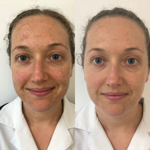 IPL Treatment Before and After - The Clinic