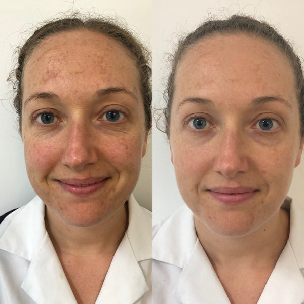 IPL Rejuvenation Before and After | The Clinic Bondi Junction