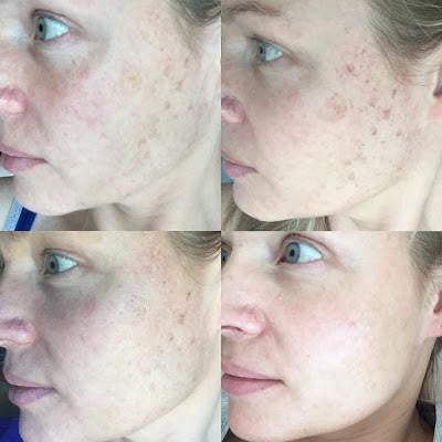 IPL Skin Rejuvenation Treatment Results - Shanga