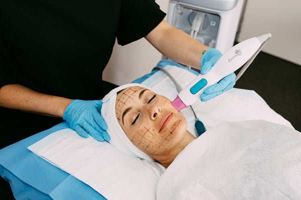 Thermage FLX Skin Tightening - The Clinic