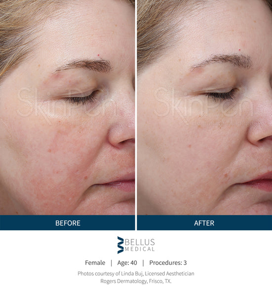 SkinPen Micro Needling Before and After Photo | The Clinic Bondi Junction