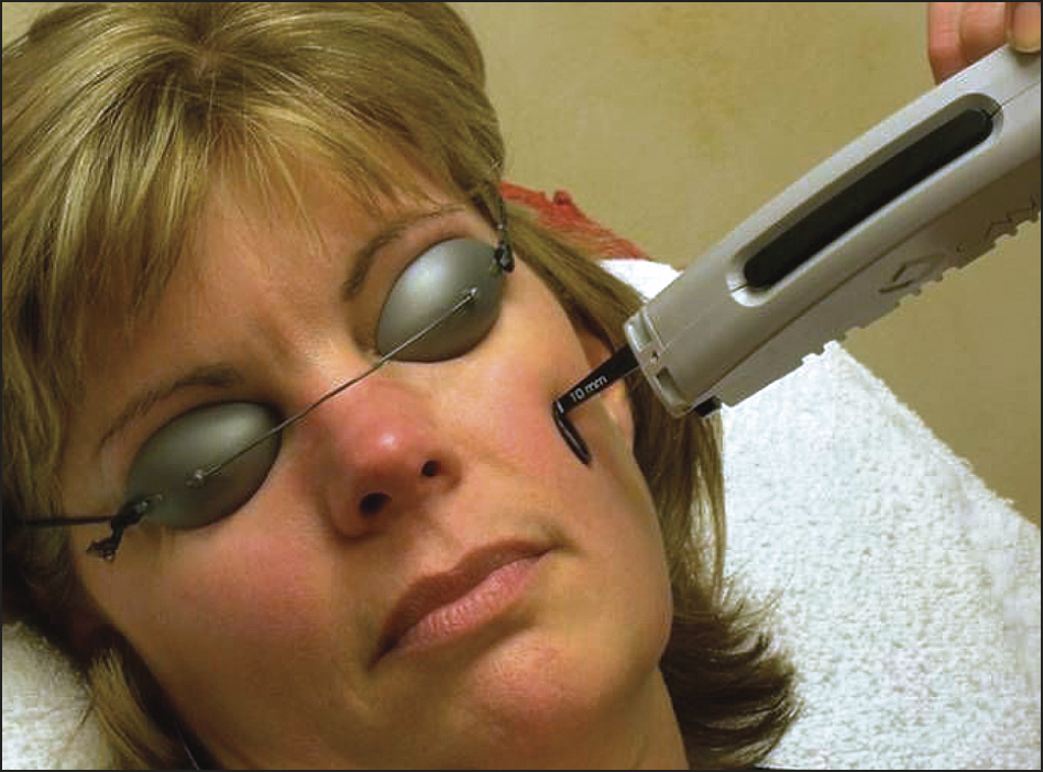 Laser Skin Treatment Series: Anti- Redness Lasers