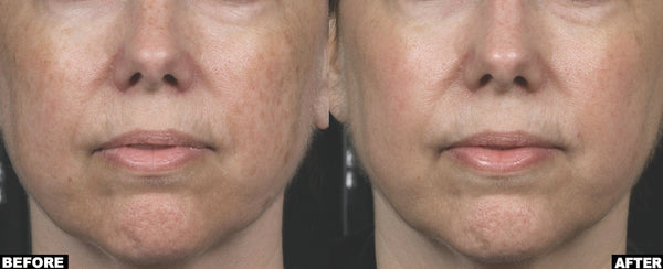 Non Ablative Resurfacing laser before and after