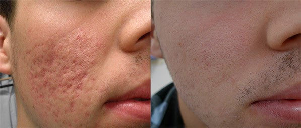 NonAblative Resurfacing Laser