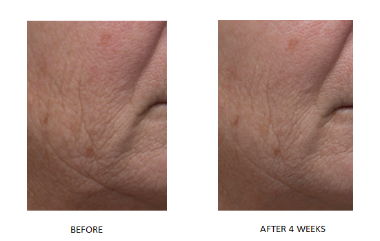 Dr. Denese Triple Strength Wrinkle Smoother Advanced Treatment