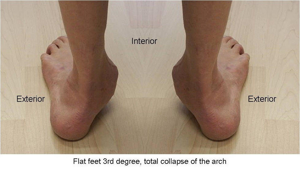 Acquired flat foot versus congenital flat foot