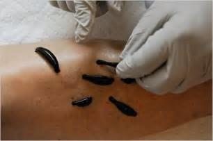 What is Leech Therapy?