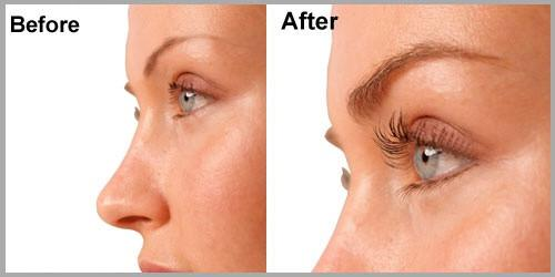 DOUBLE-LASH TREATMENT