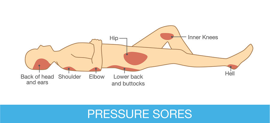 Dealing with Pressure Sores