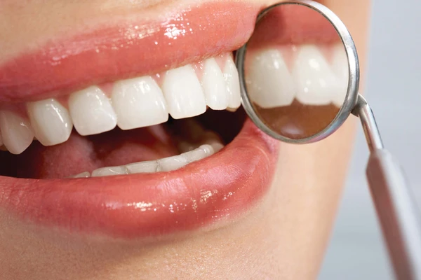 Dental Veneers: Frequently Asked Questions Answered