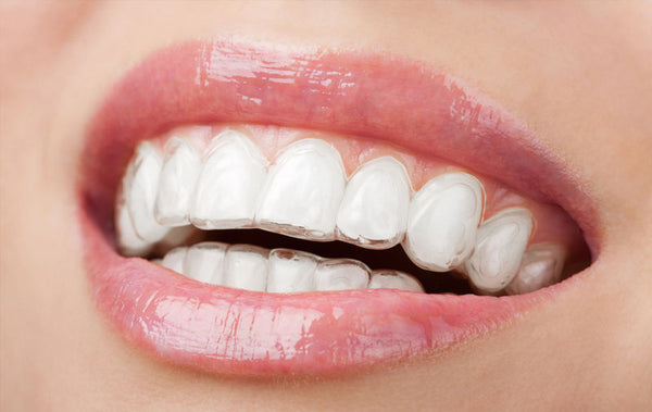 The three best types of invisible orthodontic braces