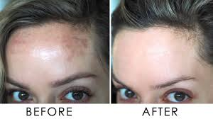 Skin Brightening Treatment