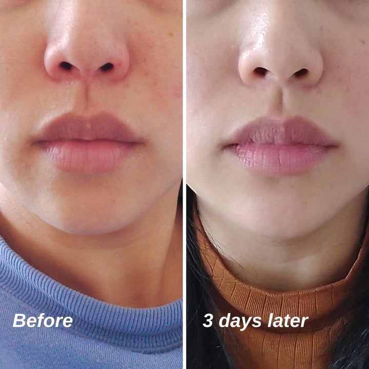 Dry, irritated, flaky skin 3 days results