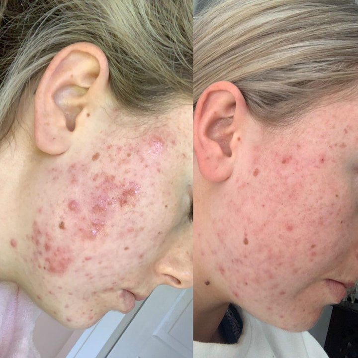 Acne-prone skin 2-month results