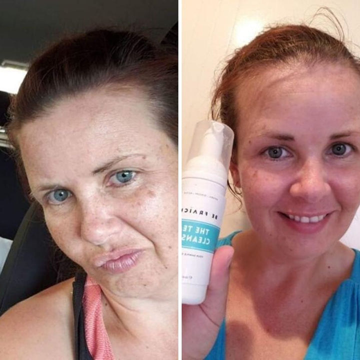 Combination acne-prone skin 1-week results