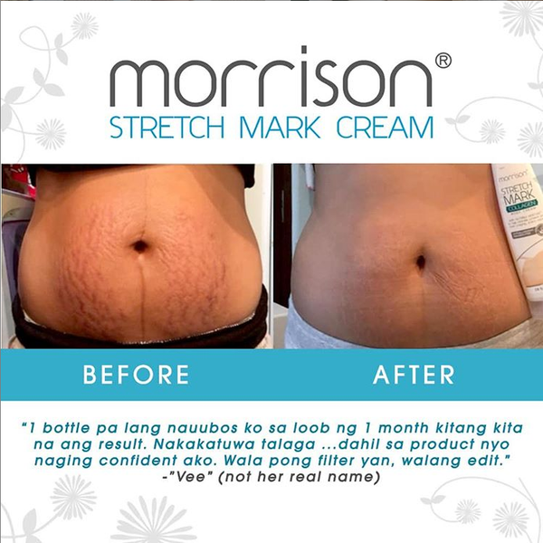 Morrison Bundle:  Stretchmark Collagen Body Cream + Elbow & Knee Whitening Lotion, SAVE P73