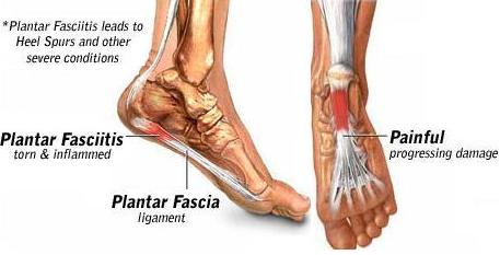 Is There a Cure for Plantar Fasciitis? | Ashley Black FasciaBlaster®