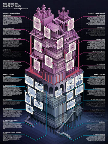 Cerebral Tower of Babel (Strokes, Aneurysms, Lesions)